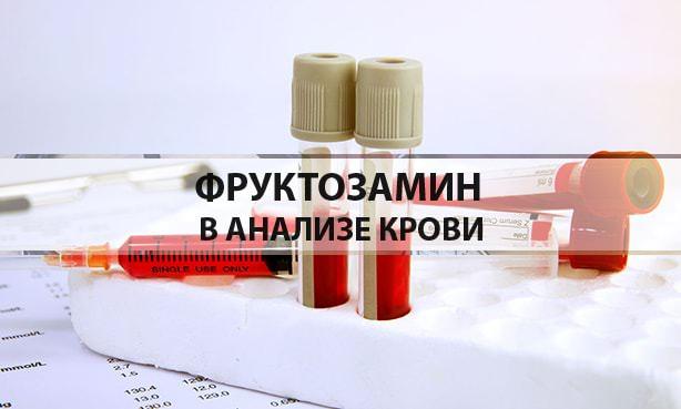 Фруктозамин в анализе крови