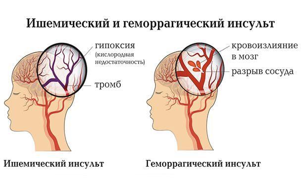 Отличие между ишемическим и геморрагическим инсультом