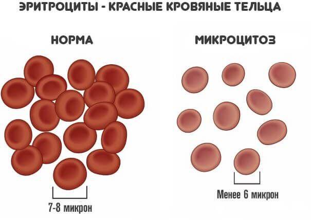 микроцитоз в крови