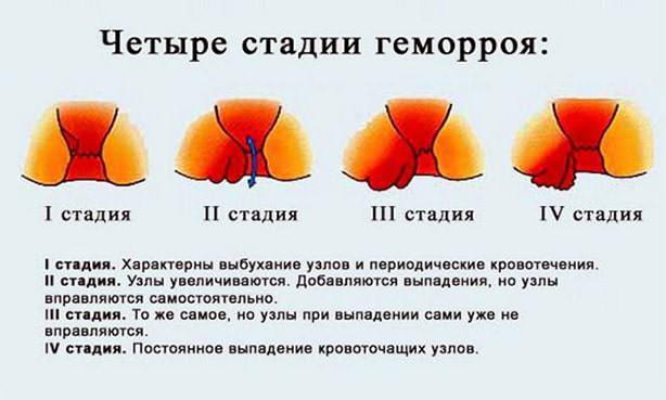 Стадийность геморроидальной болезни