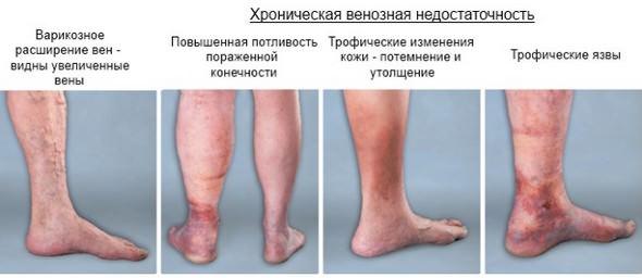 Венозная недостаточность сосудов ног