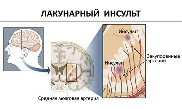 Особенности поражения мозга при лакунарном инсульте