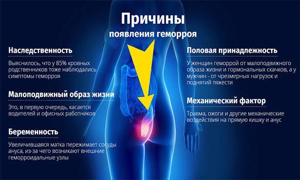 Причины геморроидальной болезни