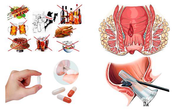 Комплексный подход к лечению геморроидальной болезни