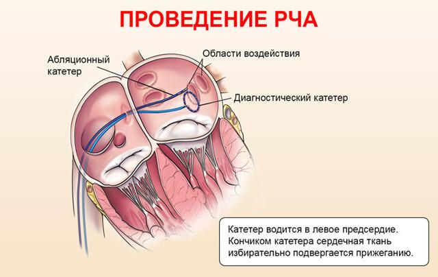 Катетерная абляция, РЧА