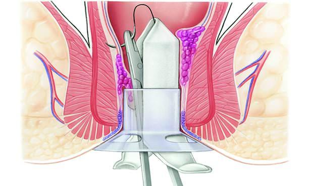 Дезартеризации геморроидального узла