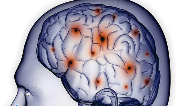 Визуализация мозга при формировании лакун
