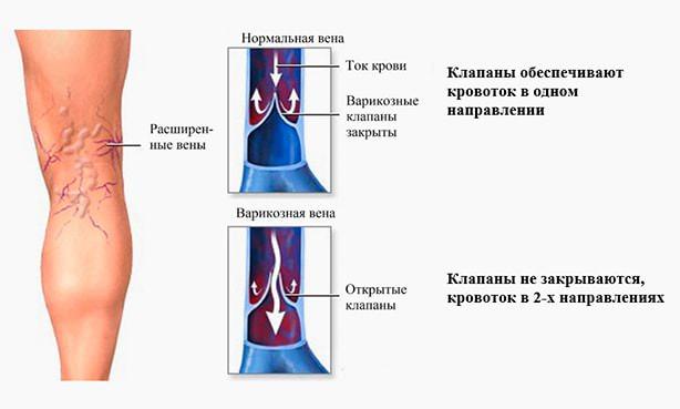 Изображение варикозно расширенной вены в сравнении со здоровой