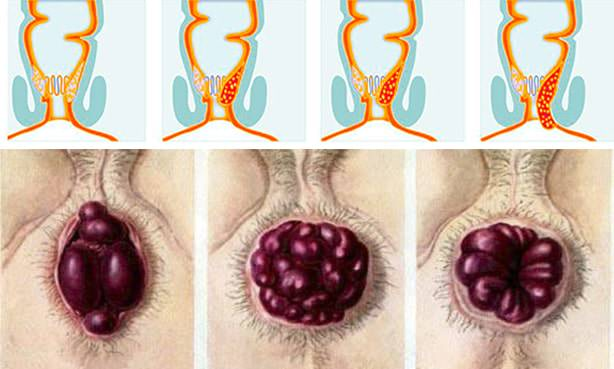 Геморрой 4 стадии