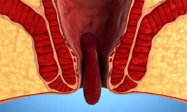 Геморрой, осложненный впадением узла наружу