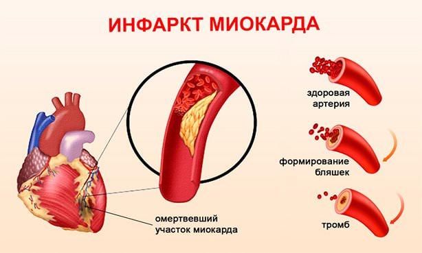 Атеросклероз сосудов сердца и формирование тромба