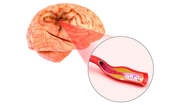 Атеросклеротическая бляшка в артериях мозга
