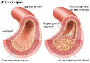 Причины, симптомы, лечение и профилактика повышенного холестерина