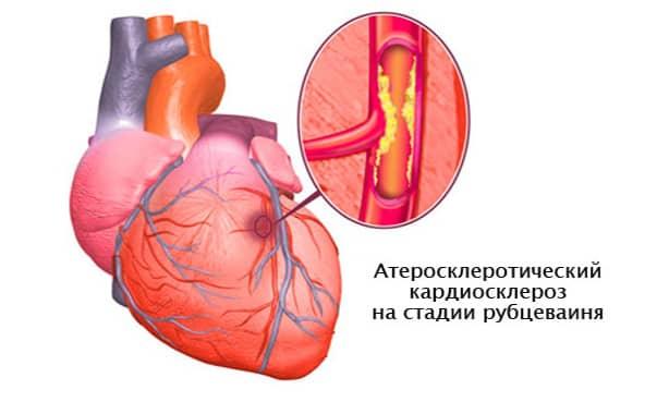 Кардиосклероз на стадии рубцевания