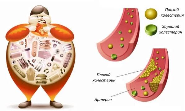 Норма холестерина в крови у женщин после 50 лет (таблица)