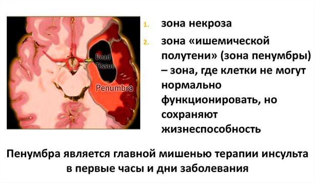 Зона инфаркта головного мозга